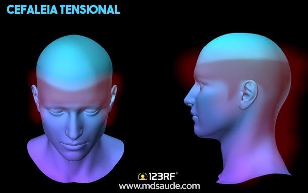 características da cefaleia tensional