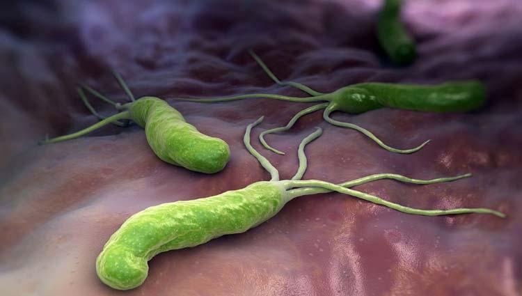 HELICOBACTER PYLORI – Causas, Sintomas e Tratamento