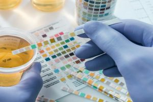 Exame de urina – Leucócitos, Nitritos, Hemoglobina…