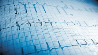 Eletrocardiograma