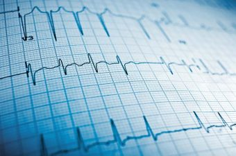 ELETROCARDIOGRAMA (ECG) – Entenda os resultados mais comuns