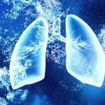 EDEMA PULMONAR AGUDO – Sintomas, Causas e Tratamento