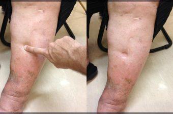 Causas de inchaços nas pernas e no corpo (retenção de líquidos)