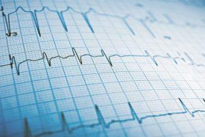Entenda os resultados do seu eletrocardiograma (ECG)