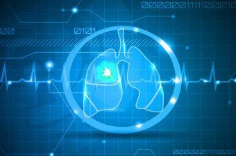 TROMBOEMBOLISMO PULMONAR – Sintomas, causas e tratamento