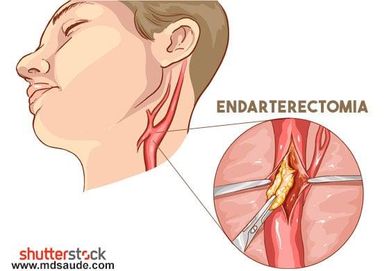 Como é feita a endarterectomia da carótida.