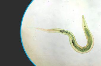 OXIURIASIS (enterobiasis)- Contagio, síntomas y tratamiento