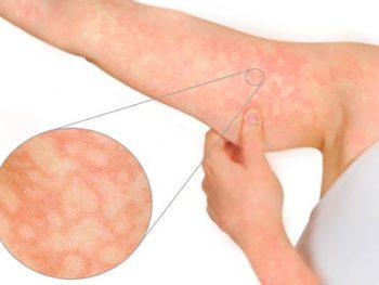 ERITEMA INFECCIOSO – Transmissão, Sintomas e Tratamento
