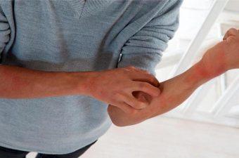 SARNA (escabiose) – Sintomas, transmissão e tratamento