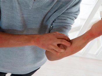 SARNA HUMANA – ESCABIOSE – Sintomas e Tratamento