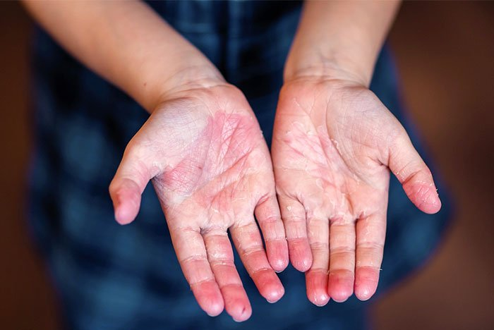Escarlatina - descamação das mãos