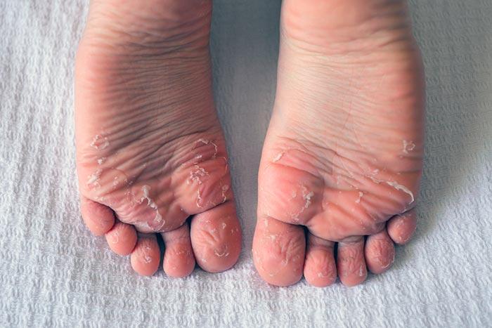 Escarlatina - Descamação dos pés