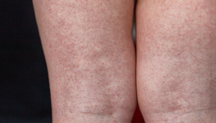 Rash da escarlatina nas pernas