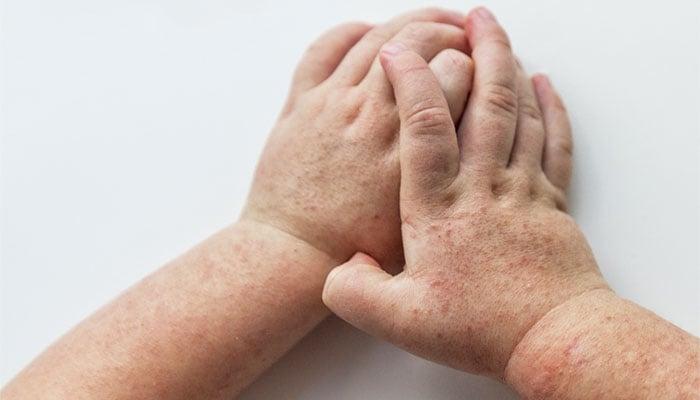 rash da escarlatina nas mãos