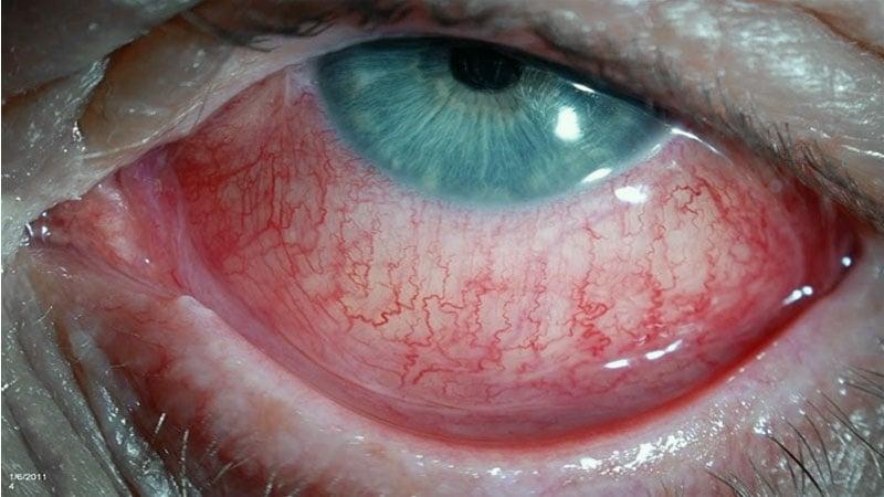 Esclerite - olhos difusamente vermelhos, com dor forte e lacrimejamento.