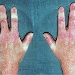 ESCLERODERMIA – Causas, Sintomas e Tratamento