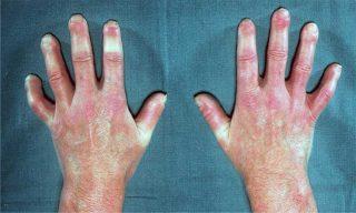 Mãos da esclerodermia