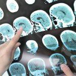ESCLEROSE MÚLTIPLA – Sintomas e Tratamento