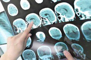 Esclerose múltipla – Causas, Sintomas e Tratamento