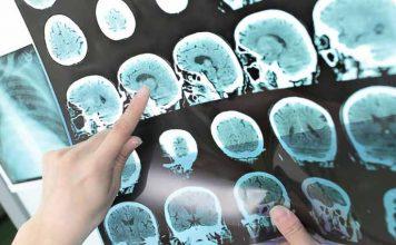 Esclerose múltipla
