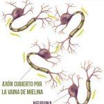ESCLEROSIS MÚLTIPLE – Síntomas y Tratamiento