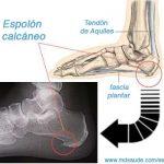 ESPOLÓN CALCÁNEO – Dolor en el talón