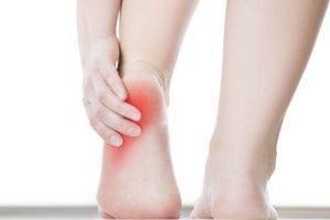 Fascite plantar – Inflamação e dor no calcanhar