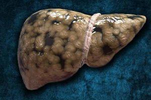 Hígado graso – Esteatosis Hepática