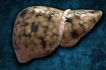 ESTEATOSE HEPÁTICA – O que é, causas, sintomas e tratamento