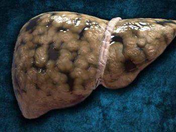 O Que São Esteatose Hepática e Esteato-hepatite?