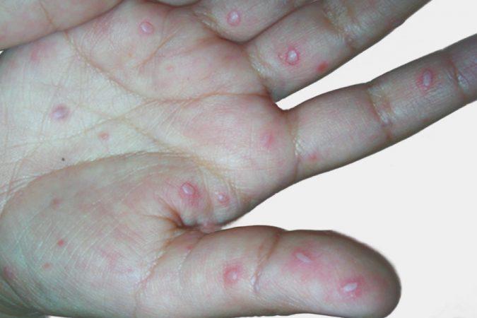 Mão-pé-boca lesão na mão
