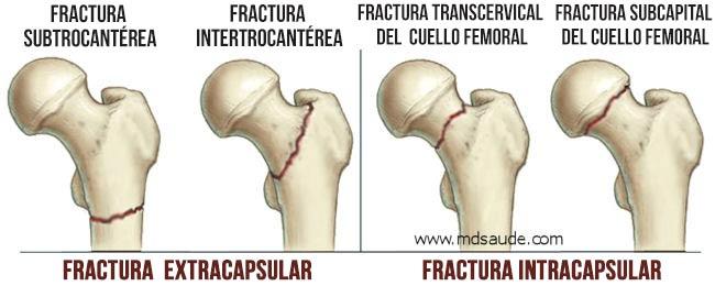 fractura-del-cuello-femoral