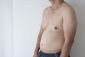 Ginecomastia – Surgimento de mamas nos homens