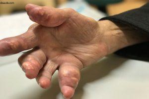 Gota (doença) – Causas, Sintomas e Tratamento