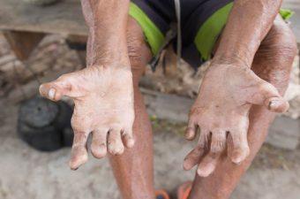 HANSENÍASE (lepra) – Sintomas, causas e tratamento