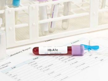 HEMOGLOBINA GLICADA – O que é, valores normais e como baixar