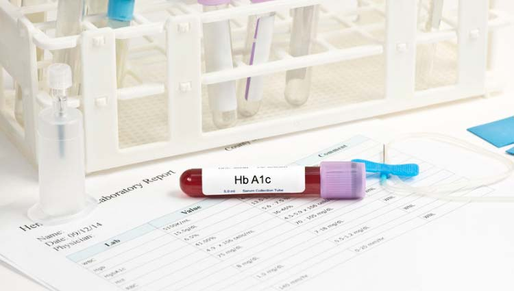 HbA1c - hemoglobina glicada