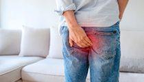 O que é hemorroida? – Sintomas, imagens e tratamentos