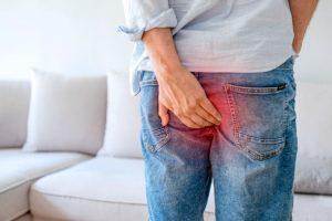 HEMORROIDES – Síntomas y tratamiento