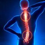 HERNIA DISCAL – Síntomas, Causas y Tratamiento
