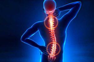 Hérnia de disco – Quais são os sintomas e como tratar