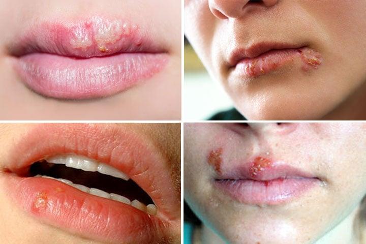 imagens de herpes labial - bolhas e crostas