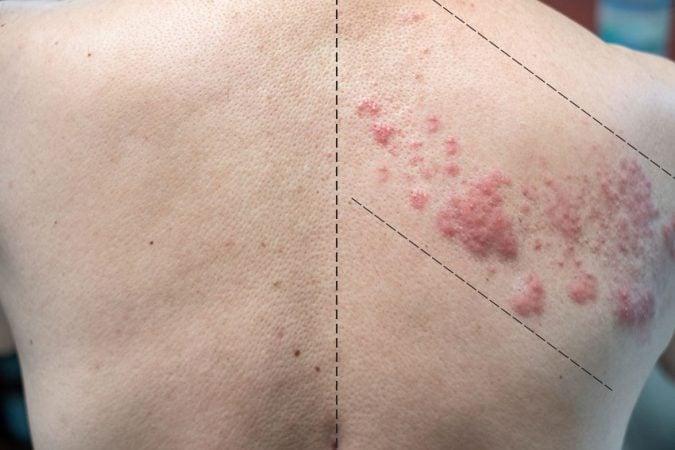 Zoster - Lesão em faixa que não ultrapassa a metade do corpo