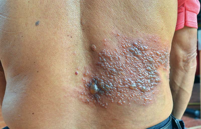 herpes zoster nas costas