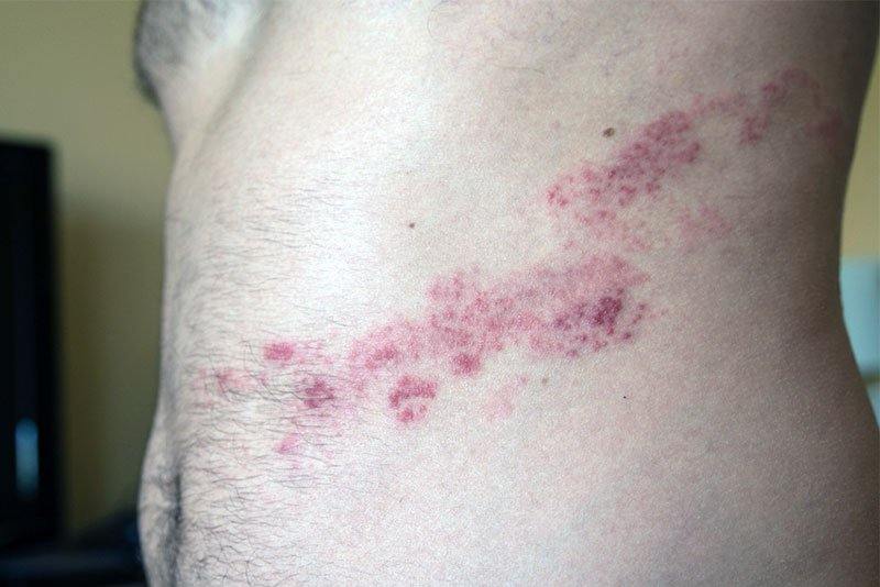 herpes zoster no tronco