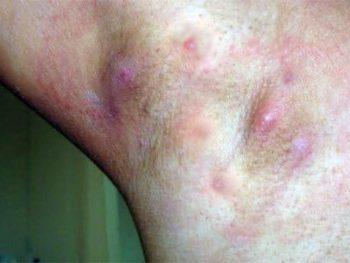 HIDRADENITE SUPURATIVA – Sintomas e Tratamento