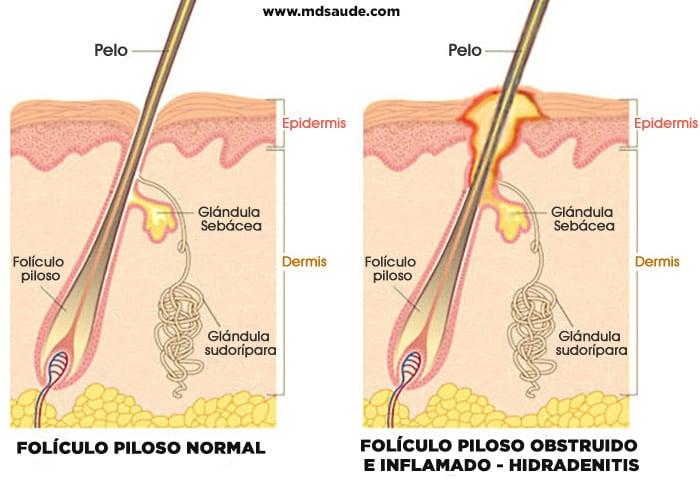 Hidradenitis supurativa - Causas y tratamiento 1