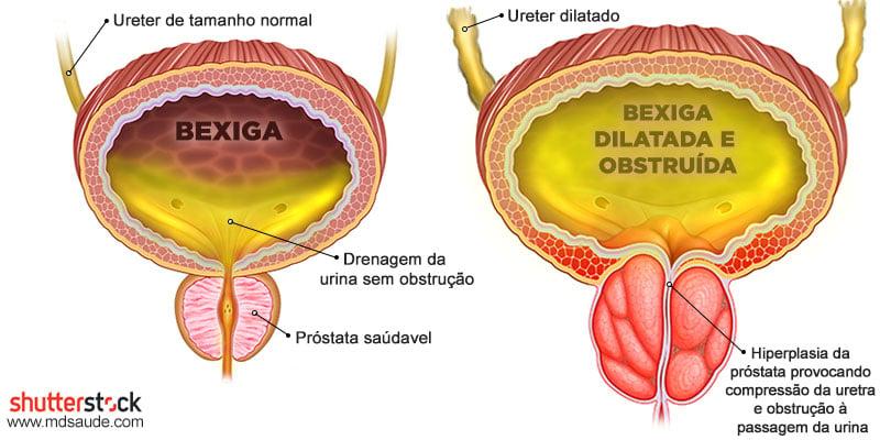 Hidronefrose por aumento da próstata