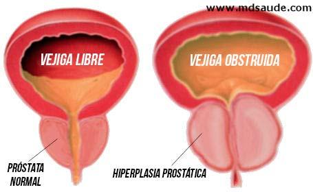 Tener mal de prostata sintomas la