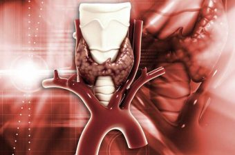 HIPERTIROIDISMO (enfermedad de Graves) – Síntomas, causas y tratamiento